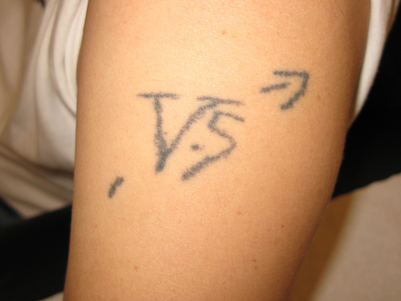 tatouage a l'aiguille