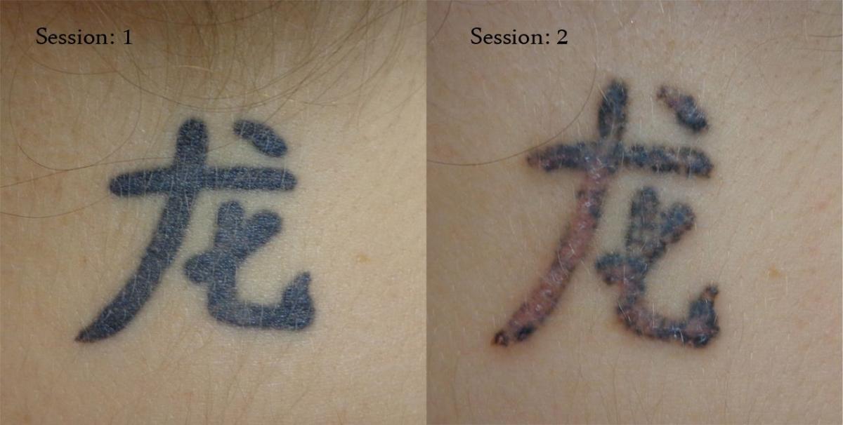 tatouage ca gratte
